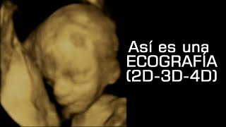 Ecografía Ultrasonido 2D, 3D y 4D diferencia