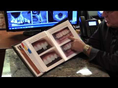 Veneers, Teeth Replacement, Root Canals, Dark Teeth Whitened, Grunge Mouth Palm Harbor Dentist