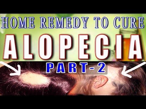 home-remedy-for-alopecia-/-baldness---part-2-ii-गंजेपन-का-घरेलू-उपचार-भाग--2-ii
