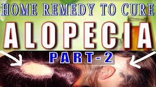 Home Remedy for Alopecia / Baldness - Part 2 II गंजेपन का घरेलू उपचार भाग -2 II
