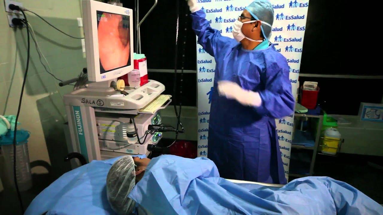 Cancer rectal jovenes, Radio Romania International, Cancer de colon en jovenes sintomas