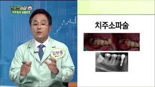 [서울탑치과병원] 건강스페셜 - 치주질환의 치료