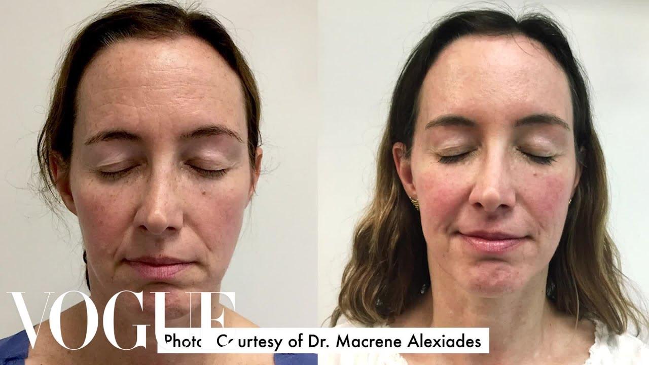 facial surgery haven New