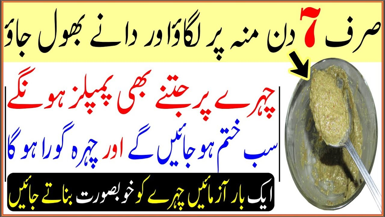 100% Remove Pimples & Acne In 7 Days    Summer Beauty And Skin Care Tips In Urdu