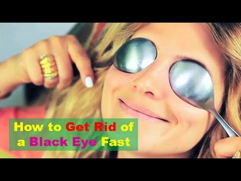 How to Get Rid of a Black Eye Fast, Safely and Naturally