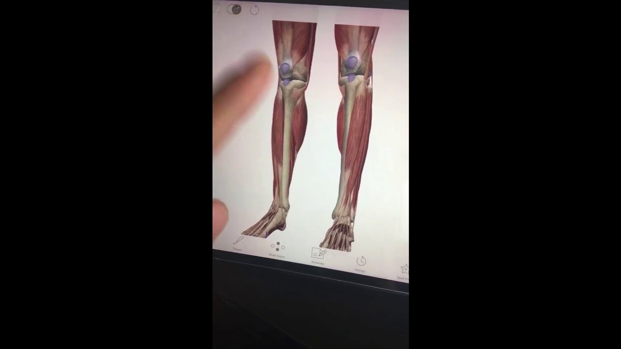 Why Do Soccer Players Wear Shin Guards/What are Shin Splints? (30 ...