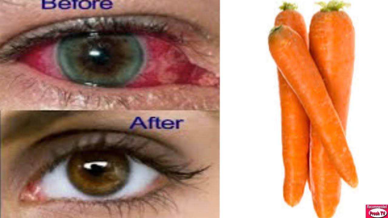 cum să îmbunătățim vederea până la 100% masajul și vederea gulerului