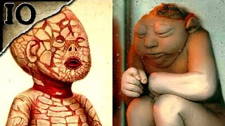 10 Horrible Birth Defects   TWISTED TENS #17
