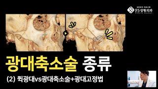 성형초보 필수시청 윤곽수술 가이드 (2) 광대축소술 종…