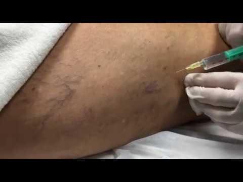 ce trebuie să faceți dacă există o varicoză