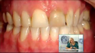 Dental Design - Stomatologia minim invaziva - Dr Bogdan Fondrea