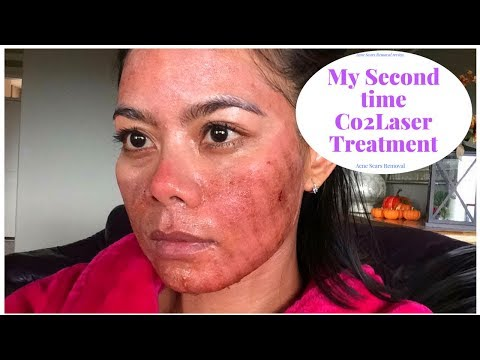 My Second Time Co2 Laser Treatment ( 7 Days Review)