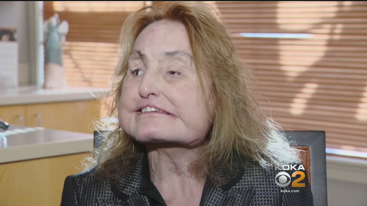 First Woman In U S To Receive Face Transplant Shares