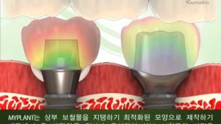 라파바이오_마이플란트_3d동영상(한국어)