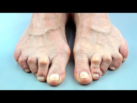 Foot Problems Treatment