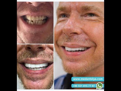 Having teeth done in Turkey | Best results