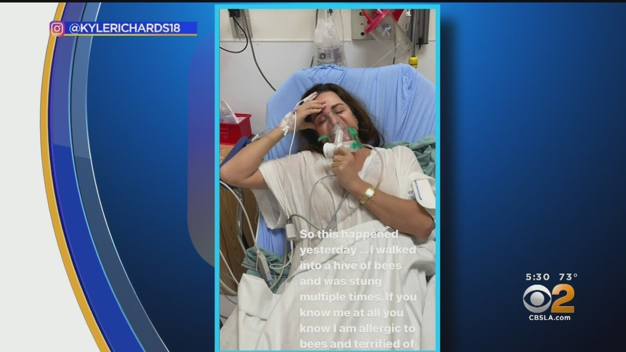 Bee Attack Lands Real Housewives Of Beverly Hills Star Kyle Richards In Hospital