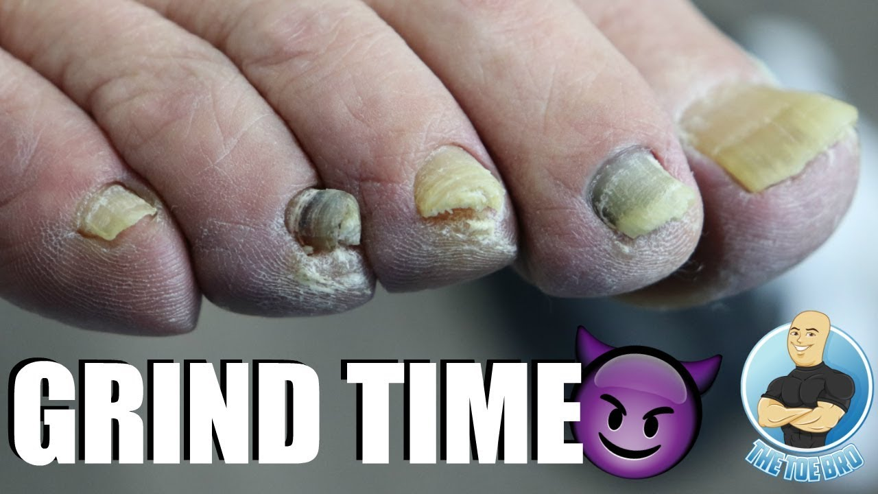 GRINDING DOWN THICK DAMAGED TOENAILS - YouTube