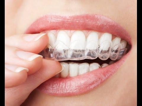 أفضل وأسرع طريقة لتبييض الاسنان وازالة رائحة الفم مضمونة وغير مكلفة وطبيعية | تبييض الأسنان HD