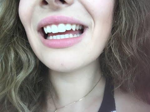 Белоснежные зубы Быстро Просто Дёшево