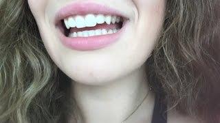видео белые зубы | Поговорим о зубах Страница 2