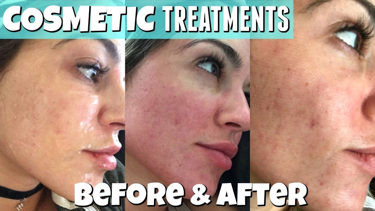 Cosmetic Treatment   COOLASER   Before & After