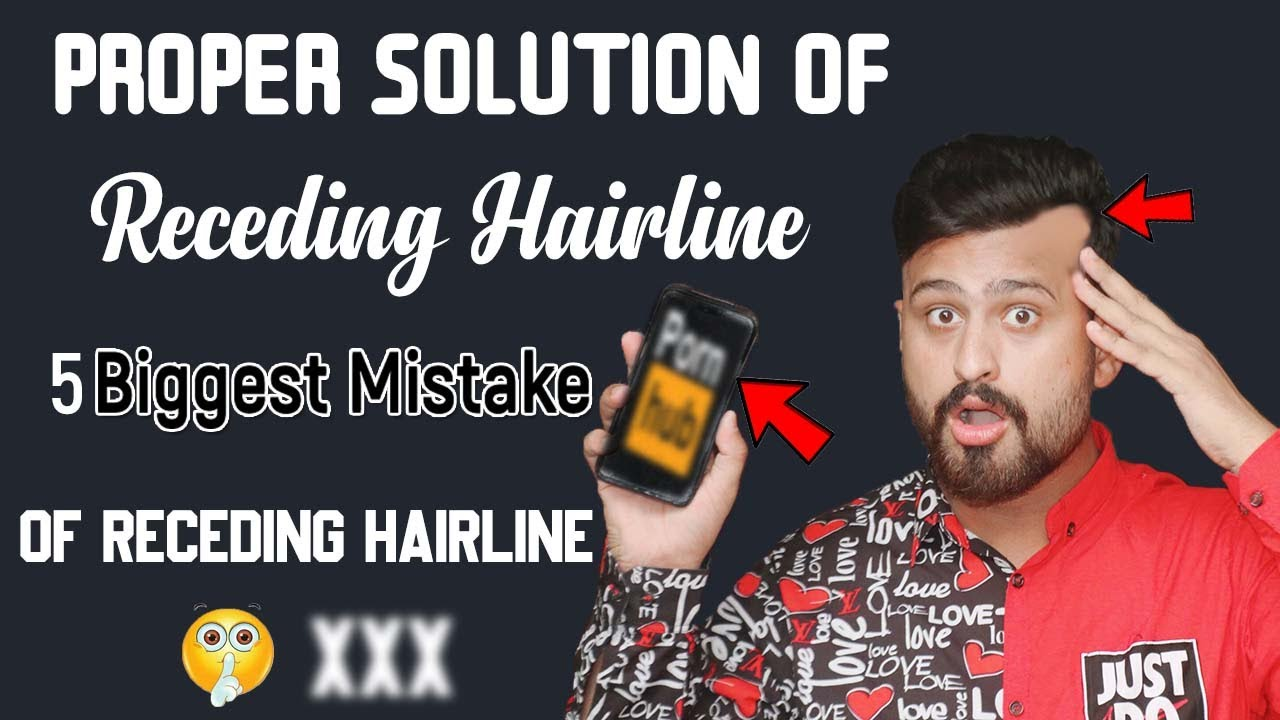 Best 5 Way To Receding Hairline Regrowth Naturally | 5 Biggest Mistake Causes Of Receding Hairline
