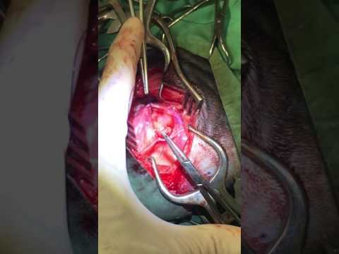 PRAA- Peristent right aortic arch, surgical correction