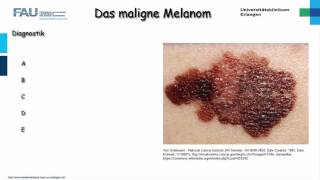 Dermatologie ─ Malignes Melanom