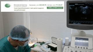 Трансректальная биопсия предстательной железы