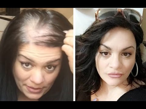 hair styles for thinning hair women how to hide thin balding with hair topper 3458 | hqdefault