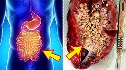 hqdefault - Too Much Vitamin C Kidney Pain