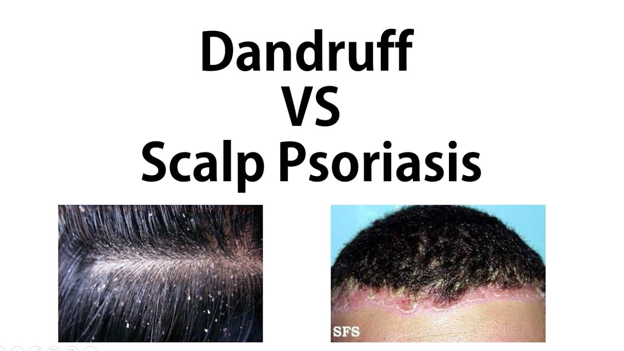 psoriasis vs dandruff on scalp