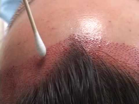 female hairline lowering close