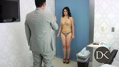 Liposuction Fat Transfer to buttocks:  Breast Augmentation