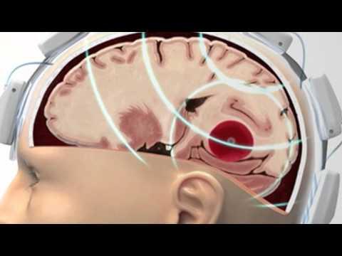 Microwave Helmet 'Can Spot A Stroke'