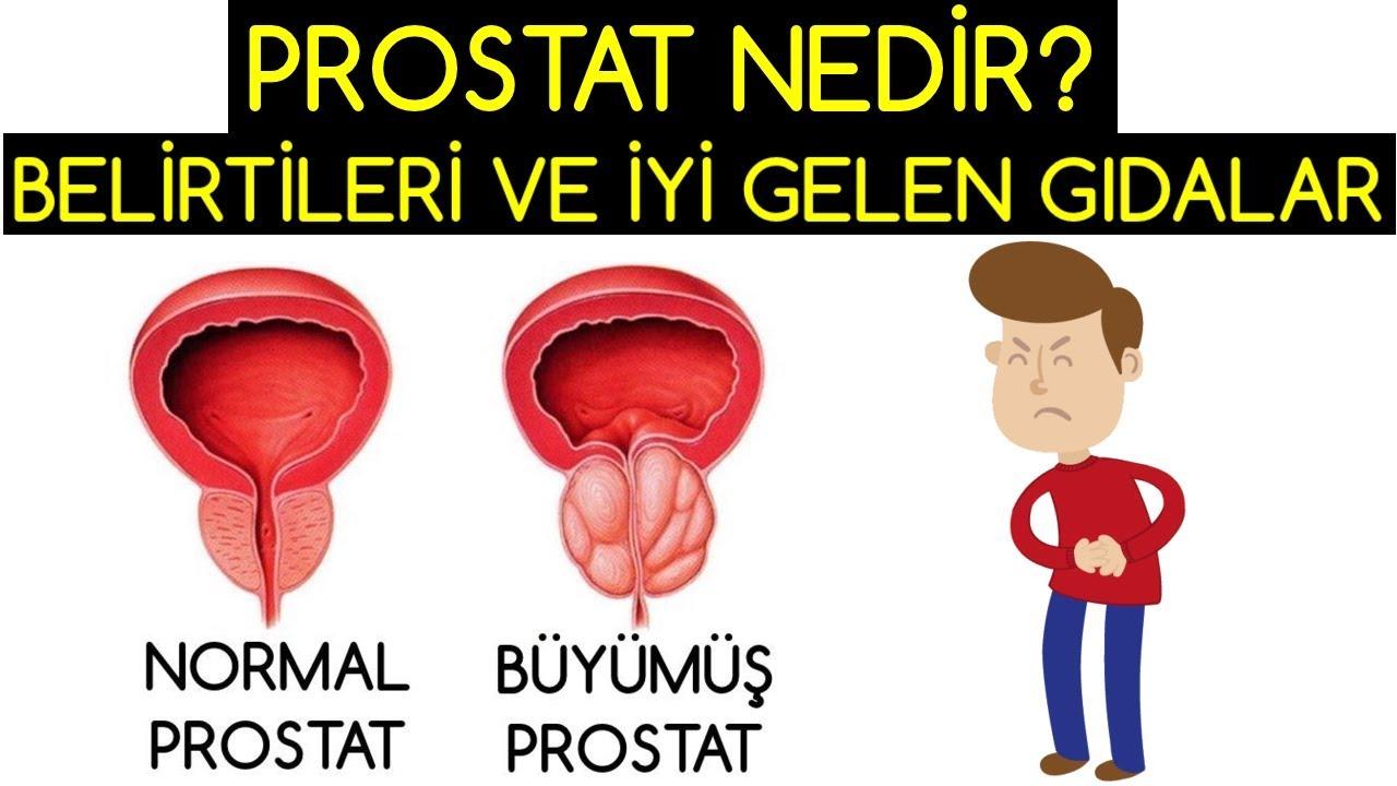 Prostata İyi Gelen Yiyecekler