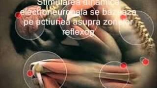 Reumatismul articular tratament Galati,reumatism articular acut tratament Galati,reumatism durere(Stimularea dinamica electroneuronala se bazeaza pe actiunea asupra zonelor reflexogene si a punctelor de acupunctura ale corpului, prin scurte impusuri ..., 2012-01-26T10:55:13.000Z)