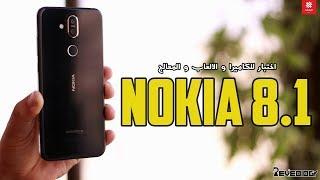 نوكيا 8.1 تجربة الكاميرا و الالعاب و المعالج و بنشمارك | Nokia 8.1 Camera & Benchmarks & unboxing
