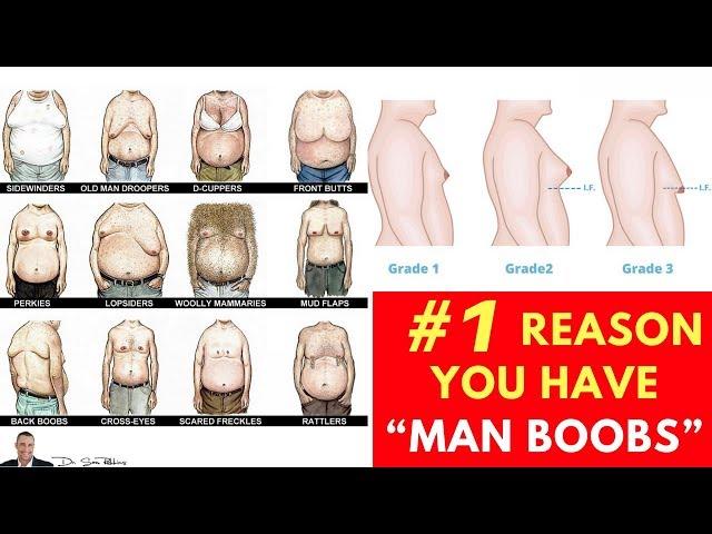 "??  Doctor Reveals #1 Reason You Have ""Man Boobs"" (Gynecomastia)"
