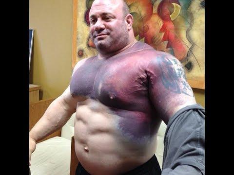 Top 5 Worst Bodybuilding Injuries ! - YouTube