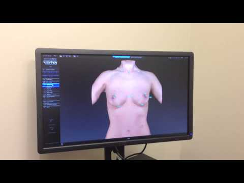 Breast Augmentation and the VECTRA 3D Imaging System