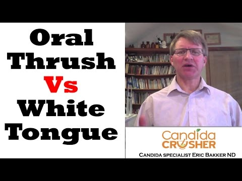 What Is The Difference Between A White Tongue And Oral Thrush?