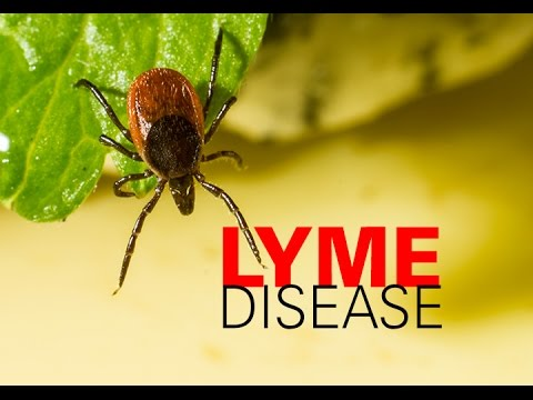 What is Lyme Disease? (Borrelia) How to Fight it?