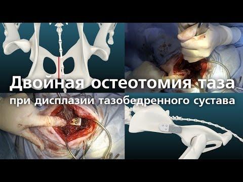 Вывих тазобедренного сустава: причины, симптомы, лечение и