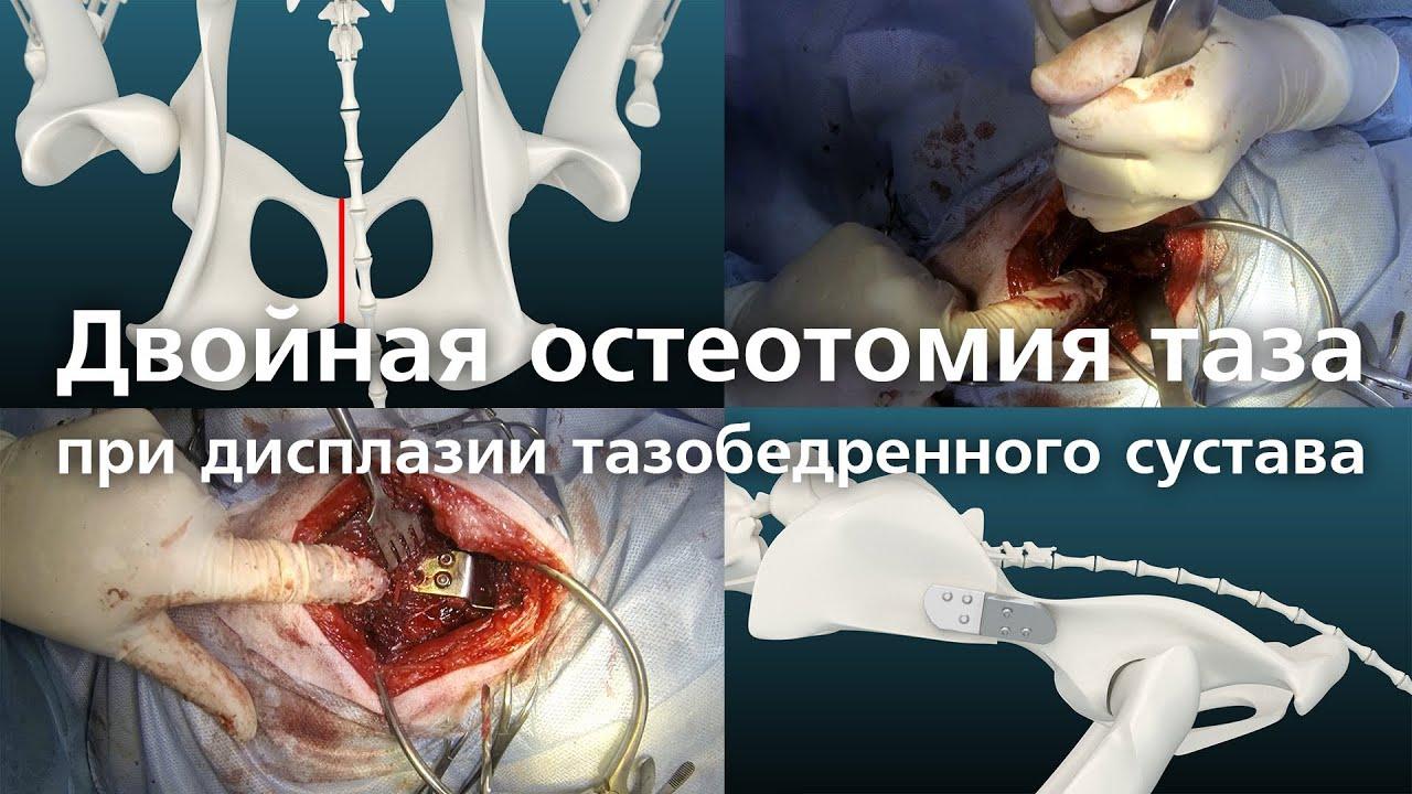 Остеотомия