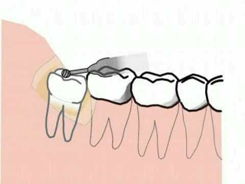 Nhổ răng không hàm dưới- extraction of lower wisdom tooth