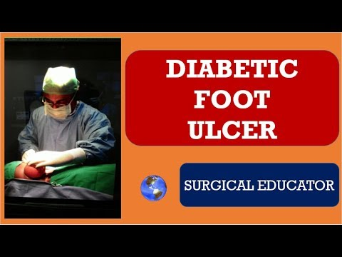 diabetic-foot-ulcer-/-surgical-wounds