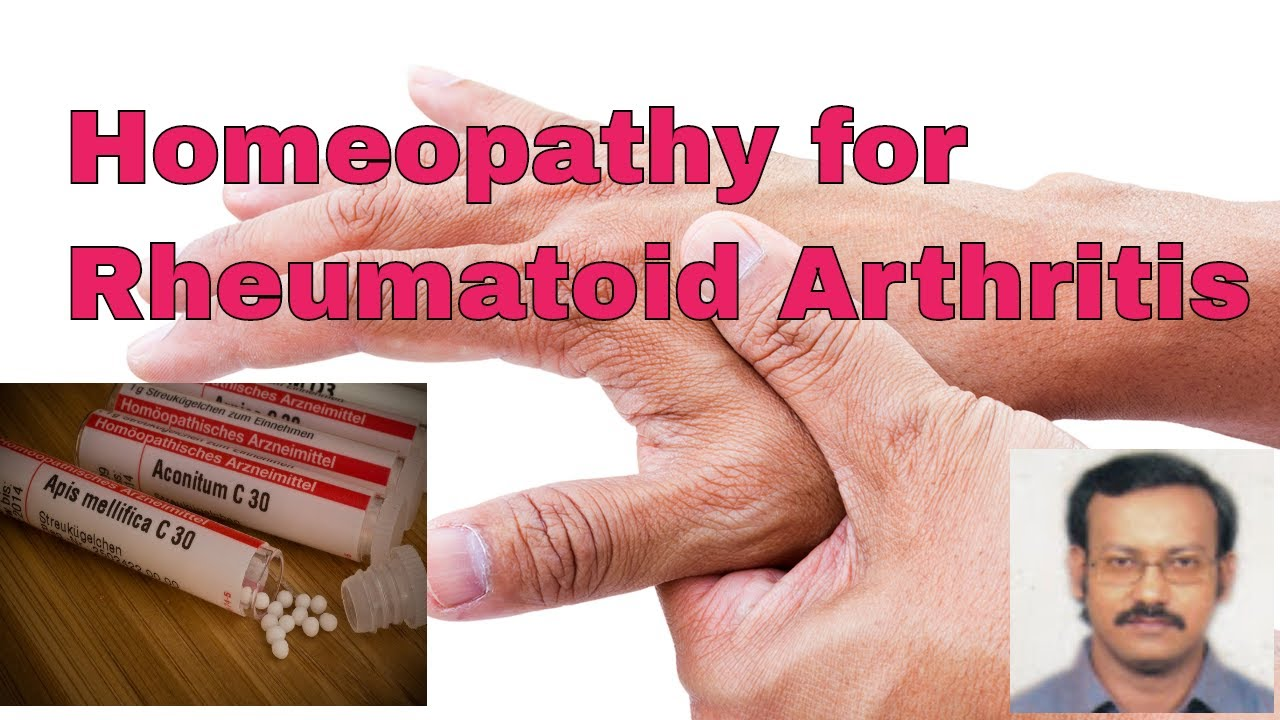 Rheumatoid Arthritis Homeopathic Treatment Rheumatoid Arthritis Rh Youtube Com Homeopathy Medicine Rheumatoid Arthritis Homeopathic Remedies Rheumatoid