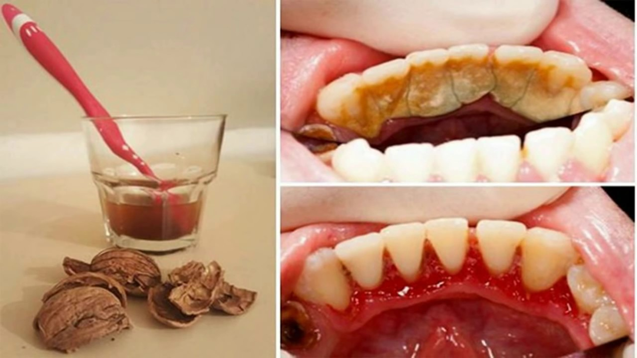 What does tooth decay look like